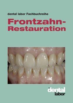 Frontzahn-Restauration