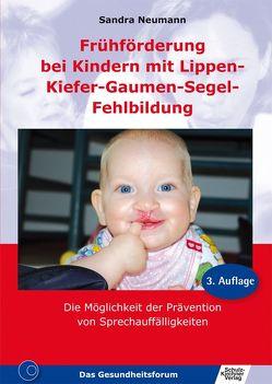 Frühförderung bei Kindern mit Lippen-Kiefer-Gaumen-Segel-Fehlbildung von Neumann,  Sandra