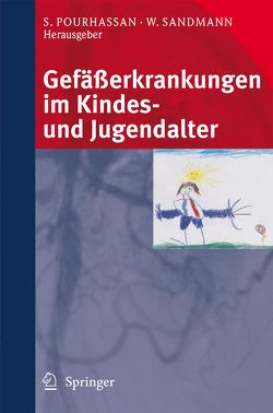 Gefäßerkrankungen im Kindes- und Jugendalter von Pourhassan,  Siamak, Sandmann,  Wilhelm V.