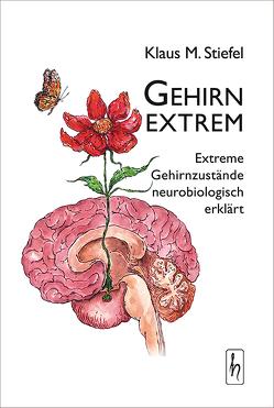 Gehirn extrem von Farell,  Anna, Stiefel,  Klaus M.