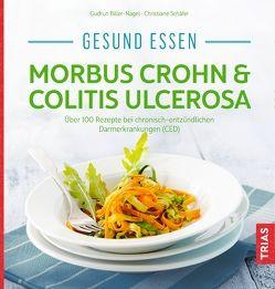 Gesund essen – Morbus Crohn & Colitis ulcerosa von Biller-Nagel,  Gudrun, Schaefer,  Christiane