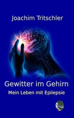 Gewitter im Gehirn von Joachim,  Tritschler