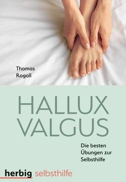 Hallux valgus von Rogall,  Thomas