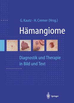 Hämangiome von Cremer,  H., Kautz,  G.