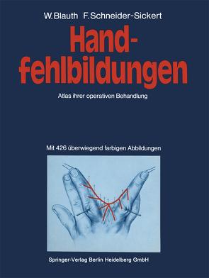 Handfehlbildungen von Blauth,  W., Schneider-Sickert,  F.