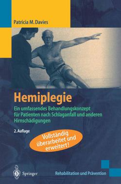 Hemiplegie von Davies,  Patricia M.