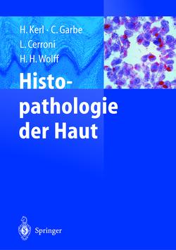 Histopathologie der Haut von Cerroni,  Lorenzo, Garbe,  Claus, Kerl,  Helmut, Wolff,  Helmut
