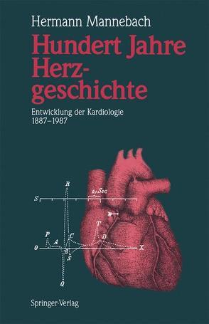 Hundert Jahre Herzgeschichte von Mannebach,  Hermann