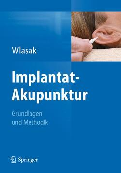 Implantat-Akupunktur von Wlasak,  Rolf