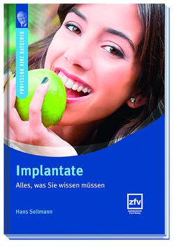 Implantate von Sellmann,  Hans
