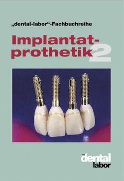 Implantatprothetik 2 von Verlag Neuer Merkur GmbH