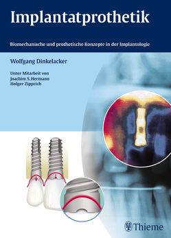 Implantatprothetik von Dinkelacker,  Wolfgang