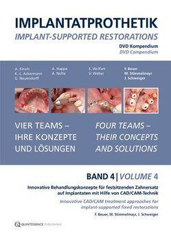 Implantatprothetik. DVD, Band 4 von Beuer,  Florian, Schweiger,  Josef, Stimmelmayr,  Michael
