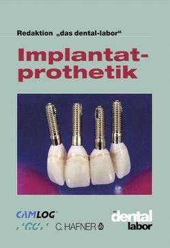 Implantatprothetik von Verlag Neuer Merkur GmbH