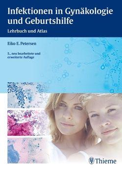 Infektionen in Gynäkologie und Geburtshilfe von Petersen,  Eiko E