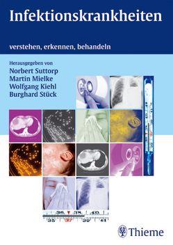 Infektionskrankheiten von Kiehl,  Wolfgang, Mielke,  Martin, Stück,  Burghard, Suttorp,  Norbert
