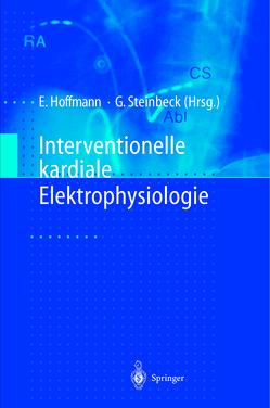 Interventionelle kardiale Elektrophysiologie von Dorwarth,  U., Fiek,  M., Gerth,  A., Hoffmann,  Ellen, Janko,  S., Kääb,  S., Näbauer,  M., Netz,  H., Nimmermann,  P., Reithmann,  C., Remp,  T., Steinbeck,  Gerhard