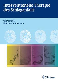 Interventionelle Therapie des Schlaganfalls von Brückmann,  Hartmut, Jansen,  Olav