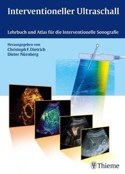 Interventioneller Ultraschall von Dietrich,  Christoph Frank, Nürnberg,  Dieter