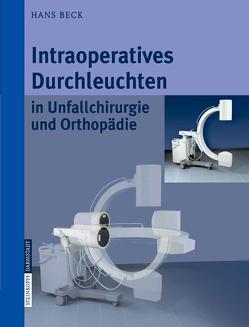 Intraoperatives Durchleuchten in Unfallchirurgie und Orthopädie von Beck,  Hans, Jurowich,  B.