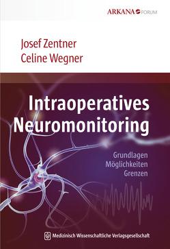 Intraoperatives Neuromonitoring von Wegner,  Celine, Zentner,  Josef