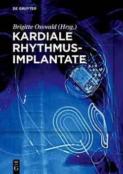 Kardiale Rhythmusimplantate von Osswald,  Brigitte