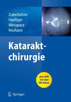 Kataraktchirurgie von Haefliger,  E., Menapace,  Rupert, Neuhann,  Thomas, Zuberbuhler,  Bruno