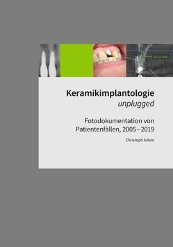 Keramikimplantologie unplugged von Arlom,  Christoph
