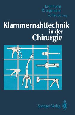 Klammernahttechnik in der Chirurgie von Engemann,  Rainer, Fuchs,  Karl Hermann, Thiede,  Arnulf