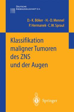 Klassifikation maligner Tumoren des ZNS und der Augen von Böker,  D.-K., Hermanek,  P, Mennel,  H.-D., Spraul,  C.W.