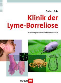 Klinik der Lyme-Borreliose von Satz,  Norbert