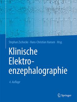Klinische Elektroenzephalographie von Hansen,  Hans-Christian, Zschocke,  Stephan