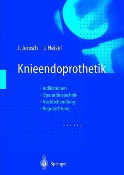Knieendoprothetik von Freeman,  M.A.R., Gschwend,  N., Heisel,  Jürgen, Jerosch,  Jörg