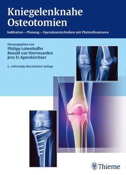 Kniegelenknahe Osteotomien von Agneskirchner,  Jens, Lobenhoffer,  Philipp, van Heerwaarden,  Ronald