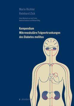 Kompendium Mikrovaskuläre Folgeerkrankungen  des Diabetes mellitus von Zick,  Reinhard