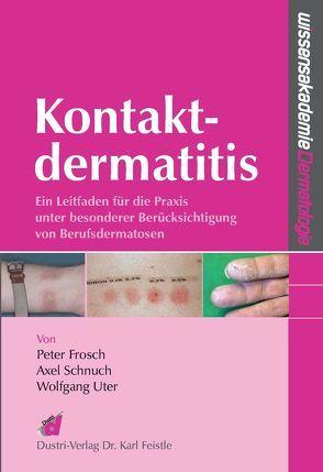 Kontaktdermatitis von Frosch,  Peter, Schnuch,  Axel, Uter,  Wolfgang