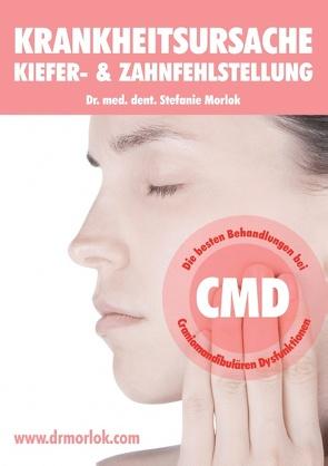 Krankheitsursache Kiefer-  & Zahnfehlstellung von Morlok,  Stefanie