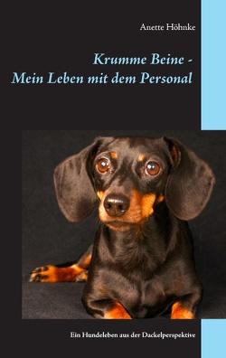 Krumme Beine – Mein Leben mit dem Personal von Höhnke,  Anette