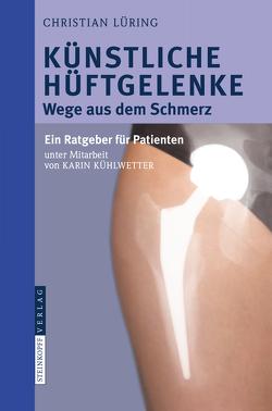 Künstliche Hüftgelenke von Kühlwetter,  Karin, Lüring,  C.