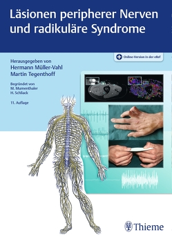 Läsionen peripherer Nerven und radikuläre Syndrome von Müller-Vahl,  Hermann, Tegenthoff,  Martin
