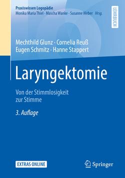 Laryngektomie von Glunz,  Mechthild, Reuß,  Cornelia, Schmitz,  Eugen, Stappert,  Hanne