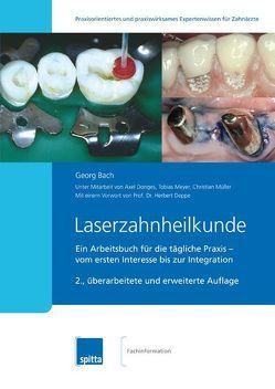 Laserzahnheilkunde von Bach,  Georg