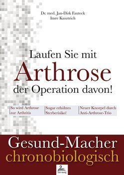 Laufen Sie mit Arthrose der Operation davon! von Fauteck,  Jan-Dirk, Kusztrich,  Imre