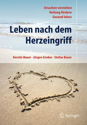 Leben nach dem Herzeingriff von Bauer,  Kerstin, Bauer,  Stefan, Ennker,  Jürgen