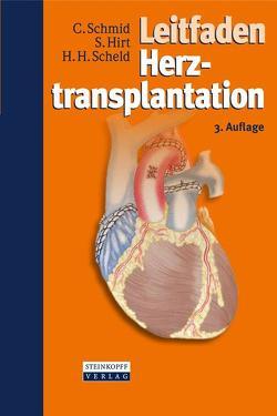 Leitfaden Herztransplantation von Hirt,  Stephan, Scheld,  Hans Heinrich, Schmid,  Christof