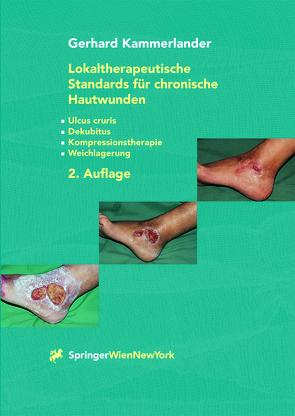 Lokaltherapeutische Standards für chronische Hautwunden von Kammerlander,  Gerhard