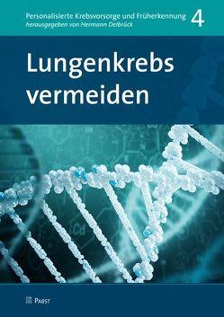 Lungenkrebs vermeiden von Delbrück,  Hermann