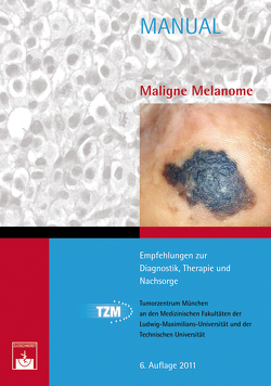 Maligne Melanome von Berking,  C., Tumorzentrum München