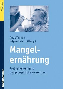 Mangelernährung von Schütz,  Tatjana, Tannen,  Antje