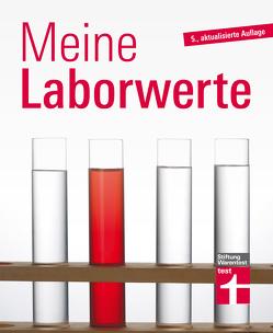 Meine Laborwerte von Bastigkeit,  Matthias